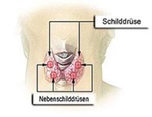 Nebenschilddruesen-Ueberfunktion-Hyperparathyreoidismus